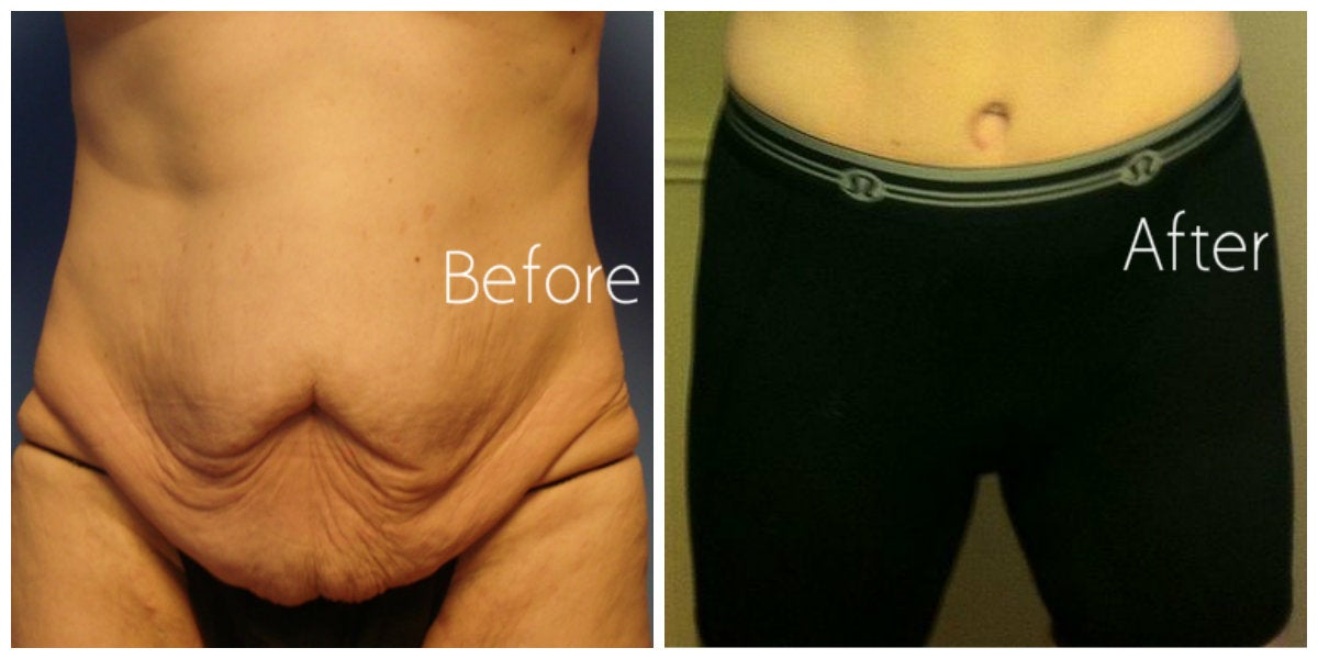 male loose skin on abdomen before and after tummy tuck