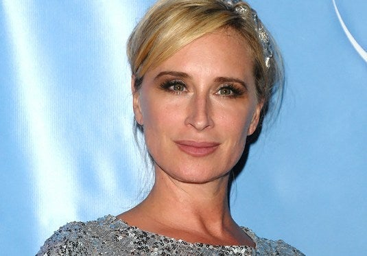 Sonja Morgan plastic surgery and botox