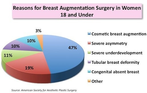 Breast implants in under 18