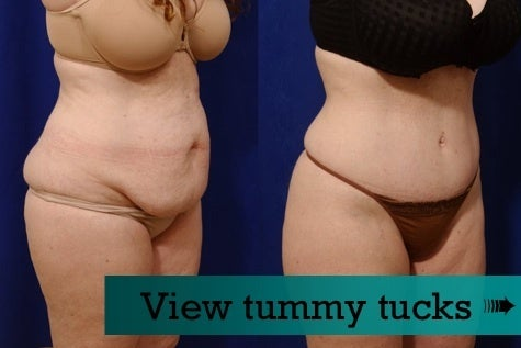 Tummy tuck before and afters