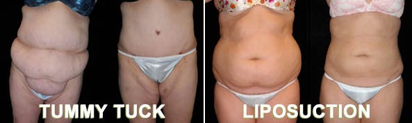 Tummy tuck versus liposuction results pictures.