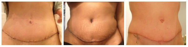 3 women with tummy tuck incisions
