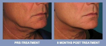 Clinical trial results from Ulthera System use in treating male jowls