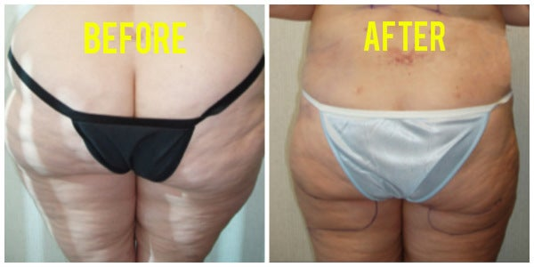 before and after liposuction womans buttocks