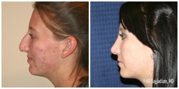 woman with light brown hair bump on nose rhinoplasty before and after
