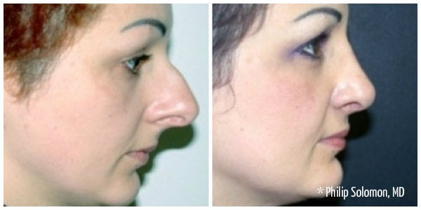 woman with eyebrows with bump on nose rhinoplasty before and after