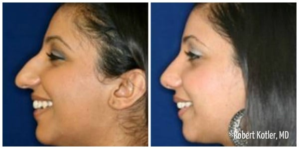 woman with dark hair bump on nose rhinoplasty before and after