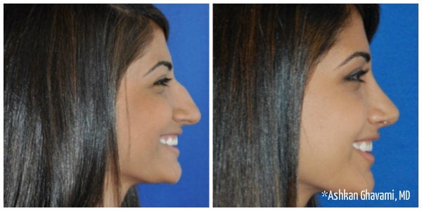 woman with shiny black hair bump on nose rhinoplasty before and after