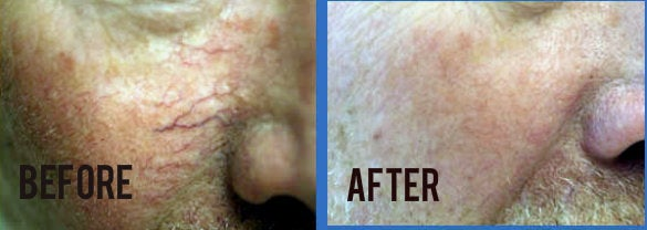 before and after photo Nd:YAG laser to erase chest wrinkles