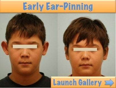 before and after ear-pinning