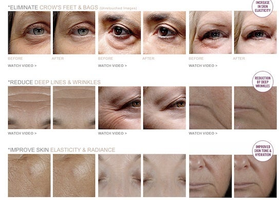 Youthology Wrinkle Cream Results, Before and After