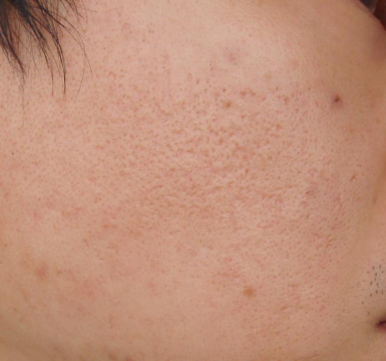 ice-pick acne scars