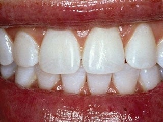 veneers to correct a smile