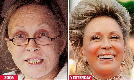 Faye Dunaway unveils her latest cosmetic procedure work at Cannes