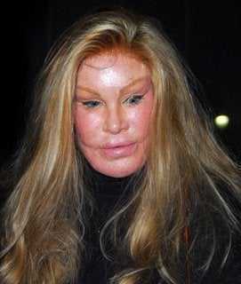 Jocelyn Wildenstein's cat-like plastic surgery