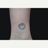 55-64 year old woman treated with Tattoo Removal