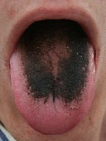 Hairy Black Tongue? Maybe it's the skin condition meds