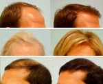 Hair Loss Treatment Overview