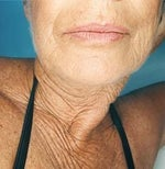 Study shows 3 ways to fight skin aging