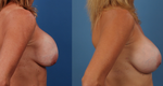 See Capsular Contracture Before & Afters — Watch the Top 5 Videos of the Week