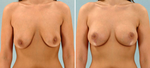 Choosing the Right Doctor for Your Breast Augmentation: 20 Essential Questions to Ask at a Consultation