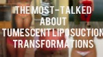 The Most-Talked About Tumescent Liposuction Transformations: 10 Before & Afters [PHOTOS]