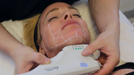 Skin Tightening and Lifting Without Surgery — Here Are Top 5 Videos of the Week