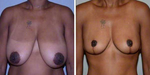 Breast Reduction Guide: Top Questions & Answers