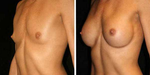 Breast Implants Guide: Frequently Asked Questions