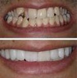 Considering Dental Veneers? ABC 20/20 says get a really good dentist