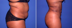 Liposuction Guide: Top Questions & Answers