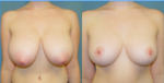 Breast reduction before and after photo
