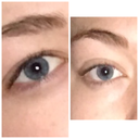 the first picture is what my should look like compared to the right as to what my eye is now