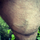 Varicose veins starting to appear...