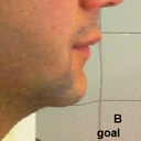 considering a chin augmentation and would prefer an implant over bone cutting