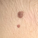 Discolored mole