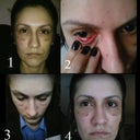 "4 shots of ""crooked eye"""