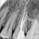 after root canal- xray