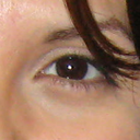 Pic 1, Before Restylane