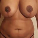 Front view left breast way too big 450 moderate plus silicone gel