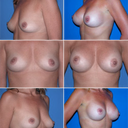 photo from online of a woman with similar breast as mine and 375 cc's of silicone implants
