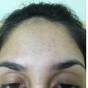forehead with rough skin and spots