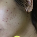 post acne red/brown spots