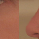 Left - Current Nose