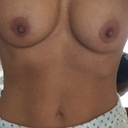 my silicone implants 7 weeks old