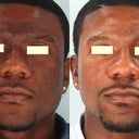 A before an after picture of a gentlemen who under went laser treatment. This is also what i would like to achieve as the noticeable difference in the texture an shade of the Before & After. The main difference is the transformation from the shade of his nose an how it compliments the shade on his cheeks, forehead, an chin on the After picture.