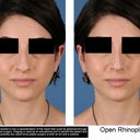 Right picture is photoshopped, approved by my surgeon as likely and achievable result.
