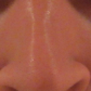 This is the nose after primary (current)