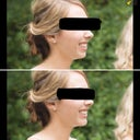 Top photo is real, bottom was photoshopped to show ideal chin projection