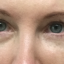 Post op  12 days - hollow to right eye